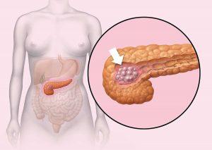 Rak trzustki u nosicieli mutacji BRCA: z olaparibem prawie jedna czwarta bez progresji po dwóch latach