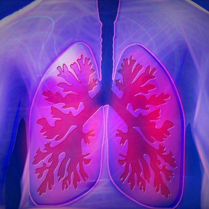 Czy da się wyleczyć zaawansowanego raka płuca?
