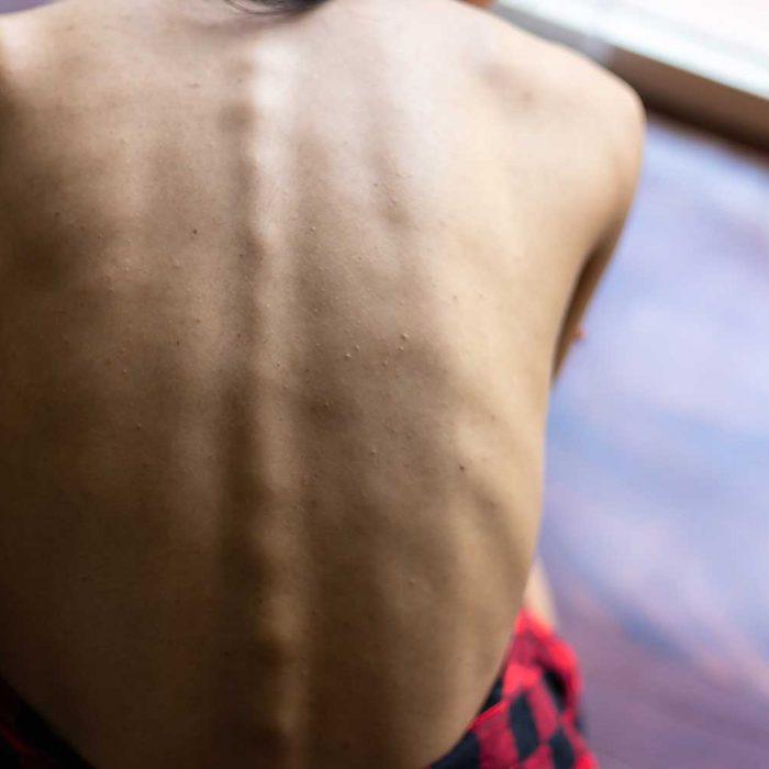 Leczenie żywieniowe w onkologii: mała dostępność i niska świadomość
