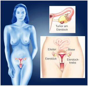 Rak jajnika: celowane terapie skojarzone nadzieją dla chorych