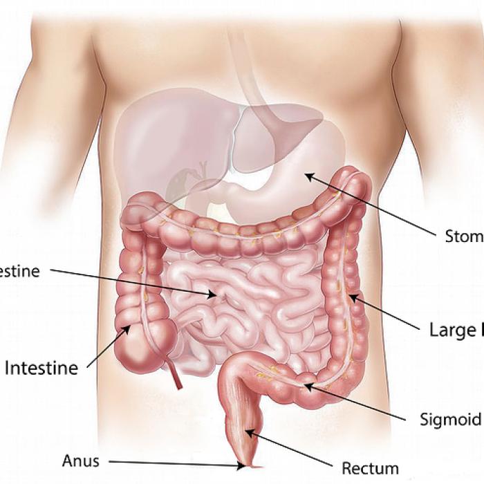 Ekspert: niepokojący wzrost liczby nowotworów przewodu pokarmowego