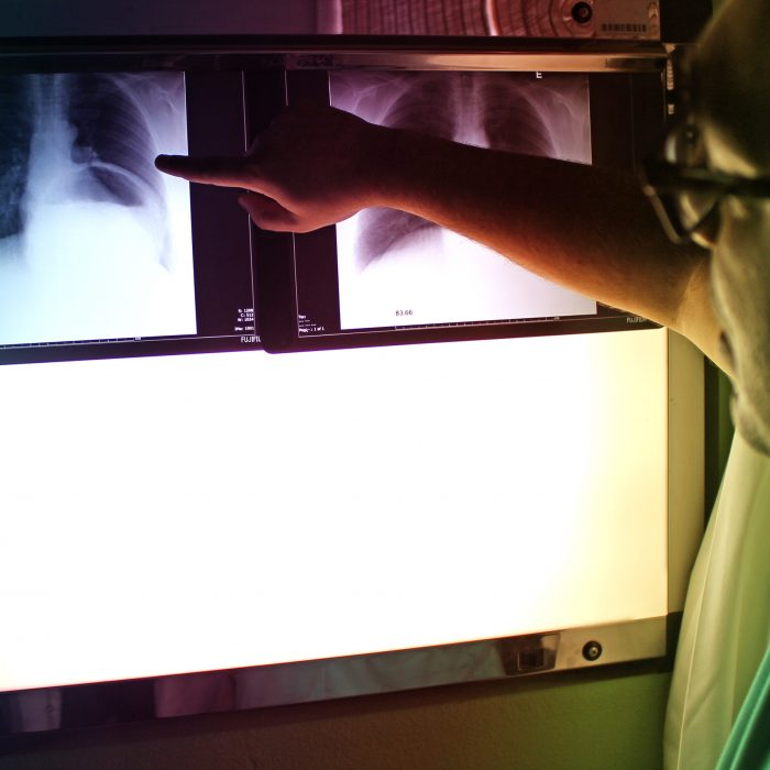 Po raz pierwszy od 40 lat:  nowa terapia w drobnokomórkowym raku płuca