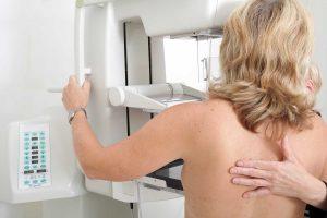 Tomosynteza zamiast mammografii?