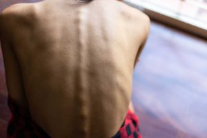 Nowotwór i niedożywienie: nierozłączna para