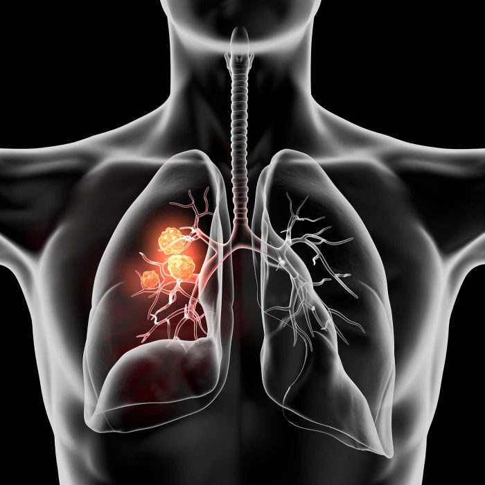FDA zatwierdziła nowy lek na drobnokomórkowego raka płuc