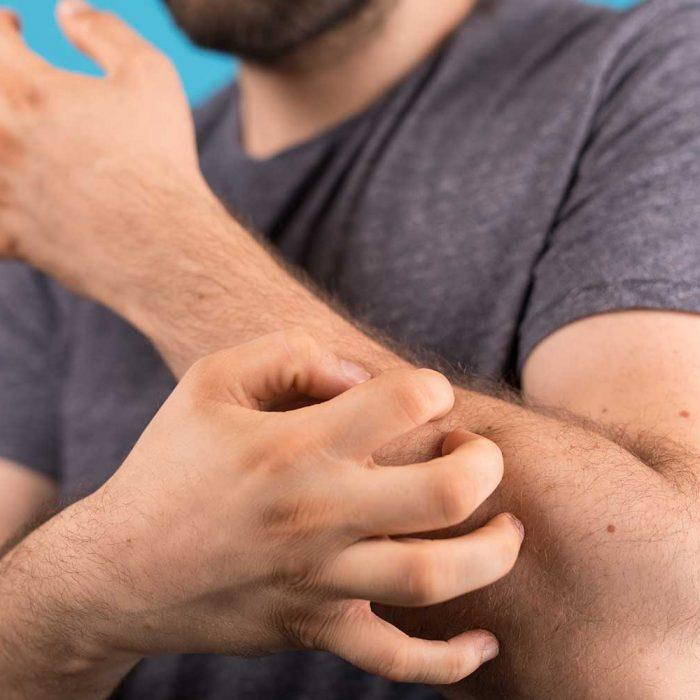 Zmiany skórne mogą sygnalizować chorobę nowotworową