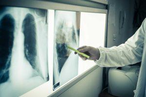 Terapia skojarzona u chorych z NDRP znacząco wydłuża przeżycie
