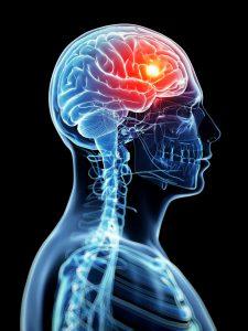 Read more about the article Badanie moczu pomoże wykryć guza mózgu
