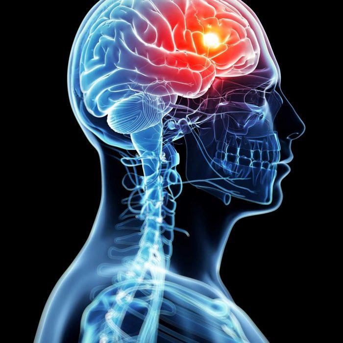 Badanie moczu pomoże wykryć guza mózgu