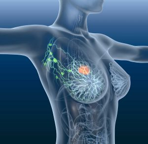 Read more about the article Rak piersi bez chemioterapii? Polskie badania nad potrójnie dodatnim rakiem piersi