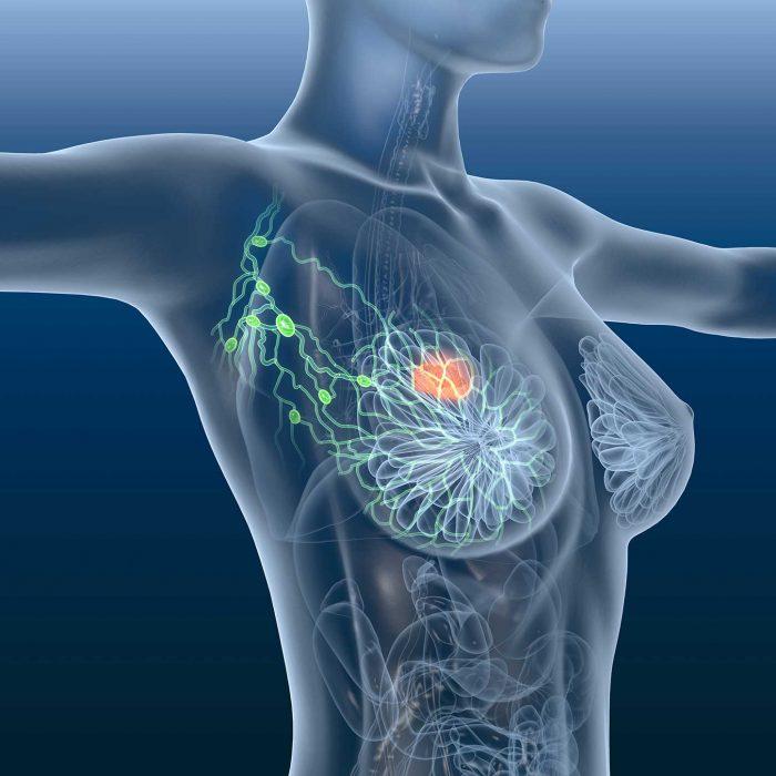 Rak piersi bez chemioterapii? Polskie badania nad potrójnie dodatnim rakiem piersi