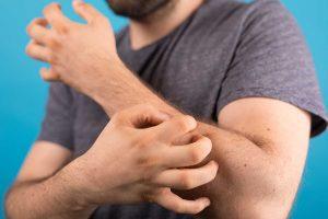 Read more about the article Jakie zmiany skórne mogą oznaczać, że masz raka?
